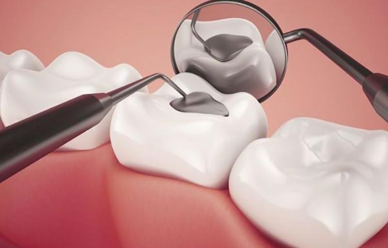 Dưới tác dụng của các tia laser các chân bám ở composite sẽ được dính chắc chắn lên răng