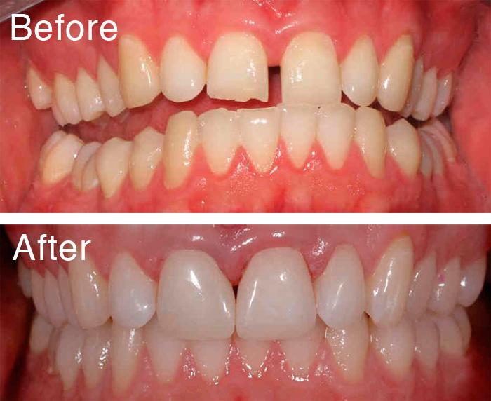 Để có được hiệu quả tốt nhất sau khi trám răng cửa bạn