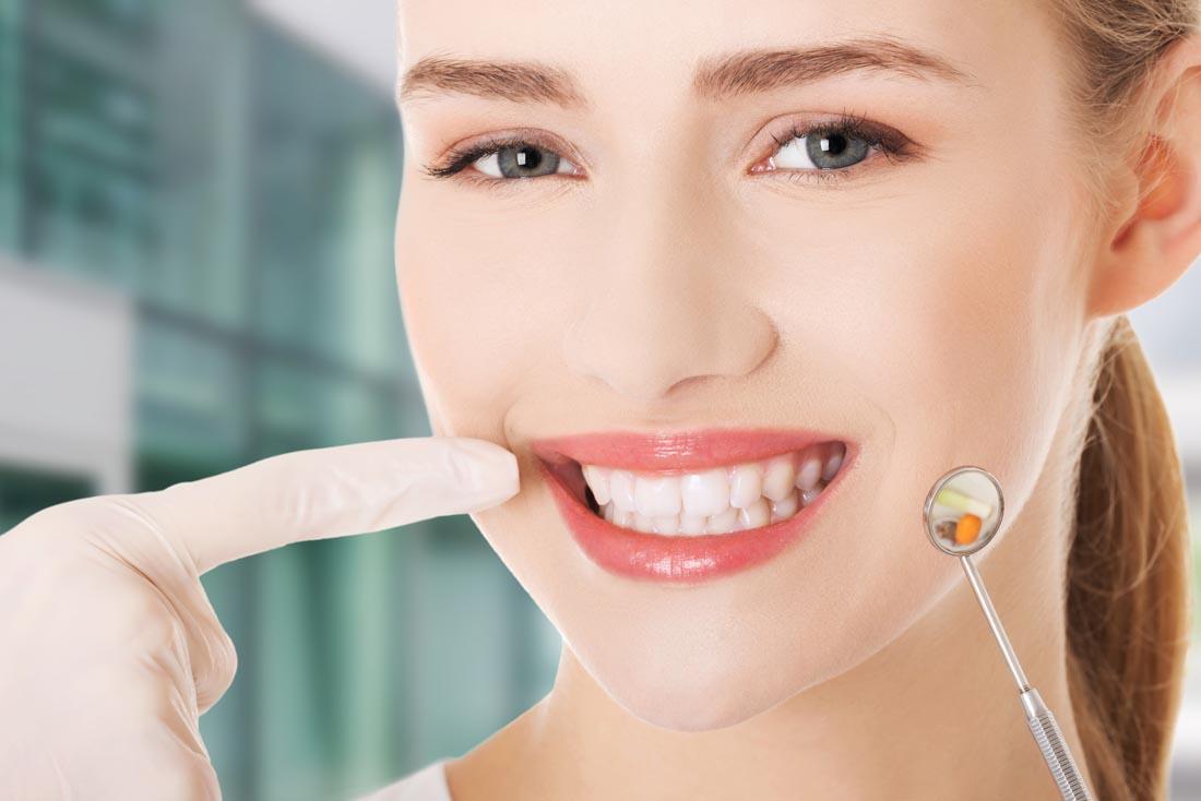 Quy trình trám răng chuẩn sẽ giúp khắc phục triệt để các khiếm khuyết của răng cửa như