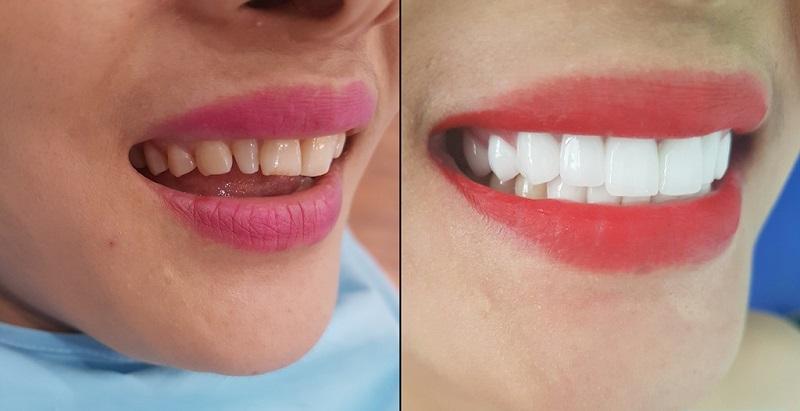 Nha khoa MEDIKA là địa chỉ chăm sóc và làm đẹp răng đáng tin cậy