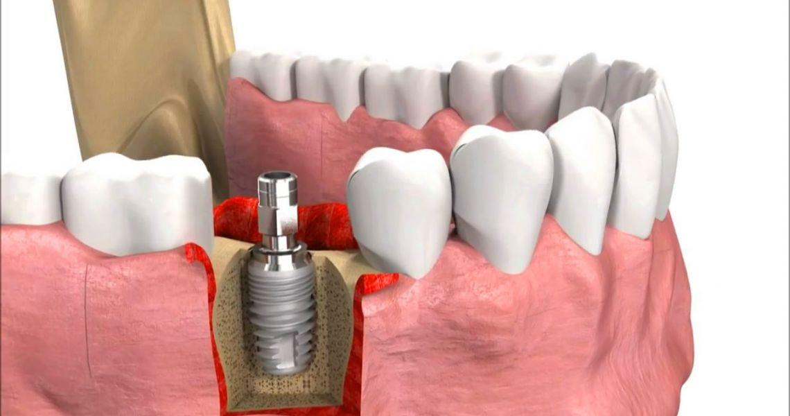 Ngay sau khi cấy trụ, bác sỹ gắn răng tạm trong khi chờ trụ Implant ổn định