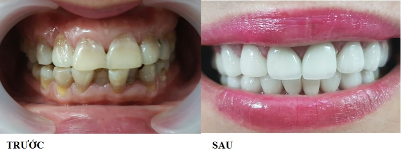 Bọc răng sứ là lựa chọn được các chuyên gia nha khoa khuyên dùng