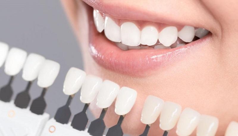 Dán sứ không mài răng có được không?
