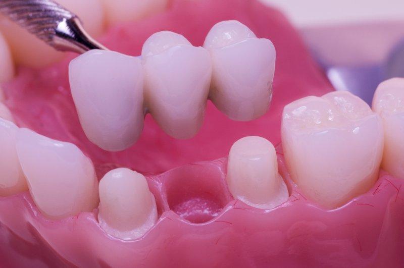 Làm cầu răng sứ cho răng bị mất