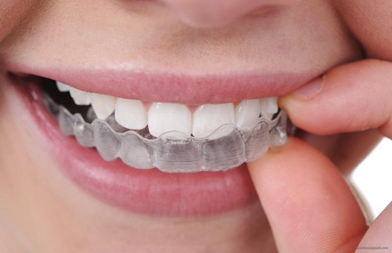 Dùng máng và thuốc giúp tác dụng tẩy trắng răng kéo dài