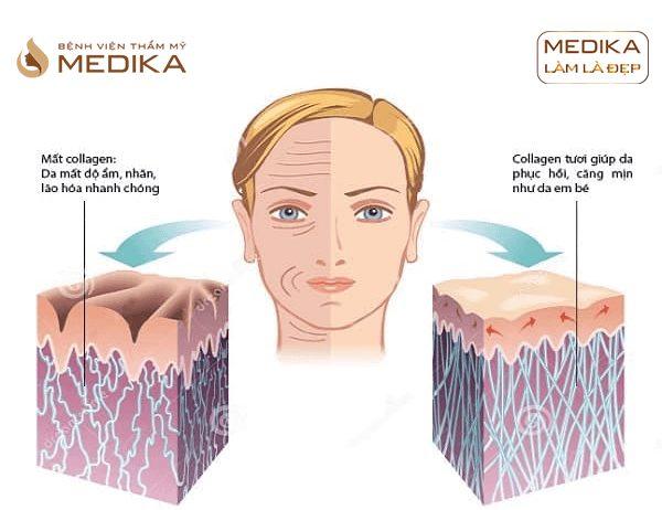 Công nghệ kép phục hồi da toàn diện Peso Perfect Skin hiệu quả ở Bệnh viện thẩm mỹ MEDIKA