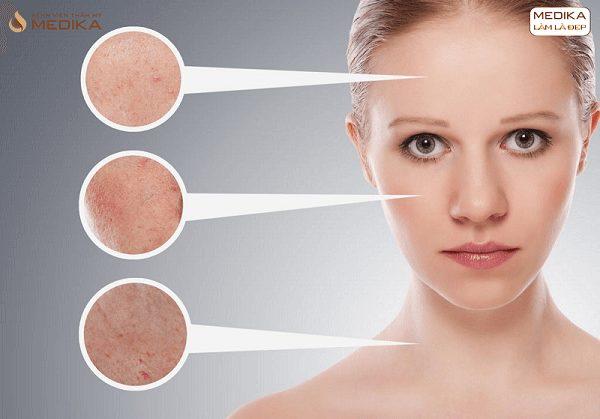 Công nghệ kép phục hồi da toàn diện Peso Perfect Skin mọi vùng da ở Bệnh viện thẩm mỹ MEDIKA