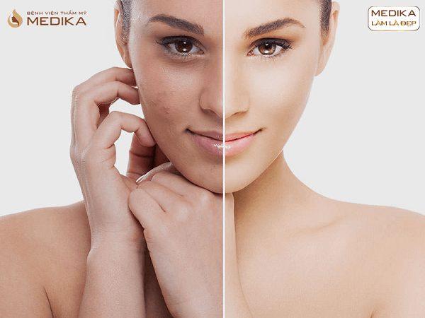 Công nghệ kép phục hồi da toàn diện Peso Perfect Skin trước sau ở Bệnh viện thẩm mỹ MEDIKA