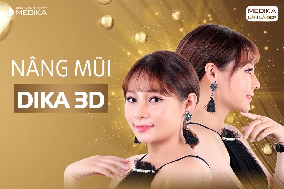Nâng mũi DIKA 3D