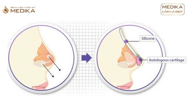 Nâng mũi DIKA 3D ở bệnh viện thẩm mỹ MEDIKA