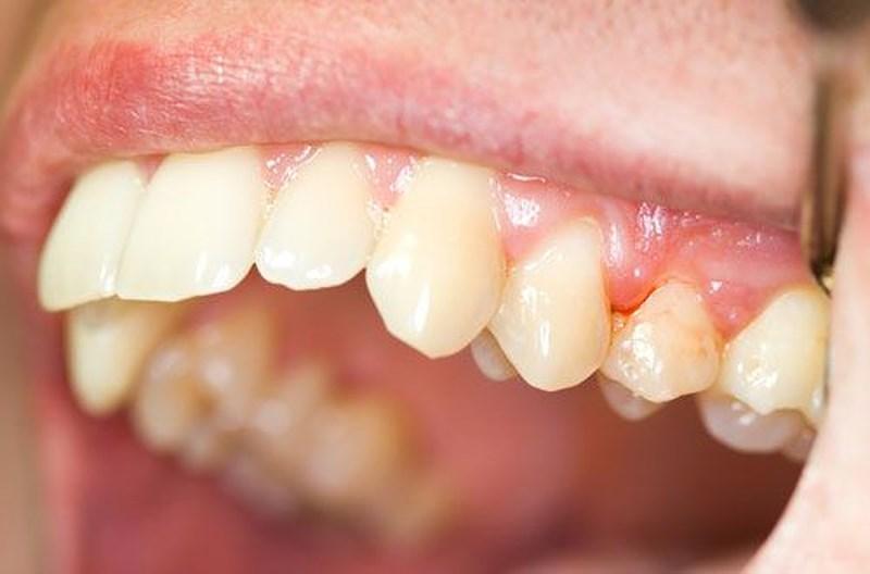 Trường hợp nào chống chỉ định với phương pháp tẩy trắng răng?