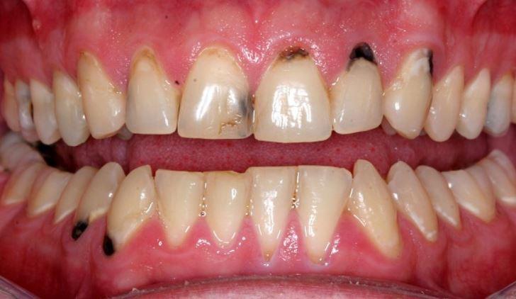 Vì sao bọc sứ kim loại bị đen chân răng?
