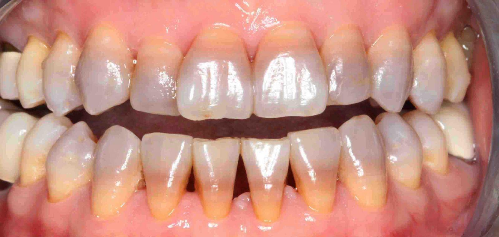 Răng bị nhiễm kháng sinh từ bên trong cấu trúc răng