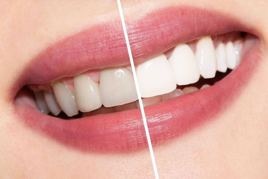 Việc tẩy trắng răng đang được thực hiện tràn lan