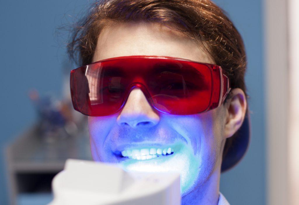 Những lưu ý quan trọng khi tẩy trắng răng tại nha khoa