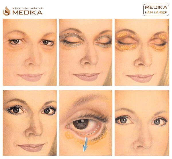 Kỹ thuật Lấy mỡ và da thừa mí mắt dưới ở Bệnh viện thẩm mỹ MEDIKA