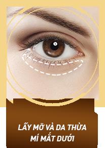 Lấy mỡ và da thừa mí mắt dưới