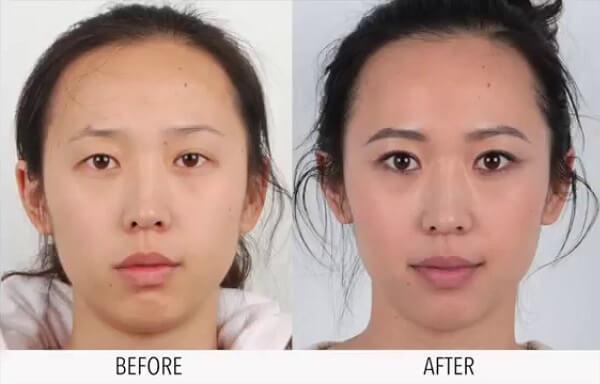 Kết quả trước và sau thực hiện mắt sửa lại MEDIKA