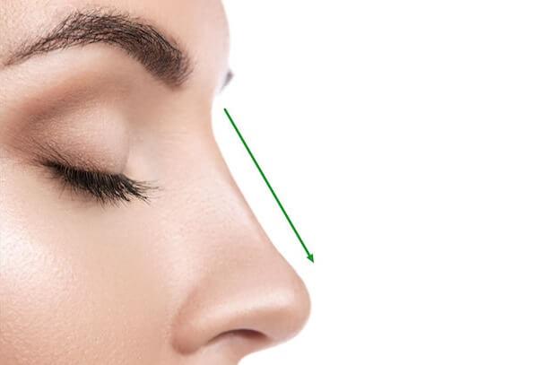Kinh hoàng biến chứng nâng mũi L line không đúng cách