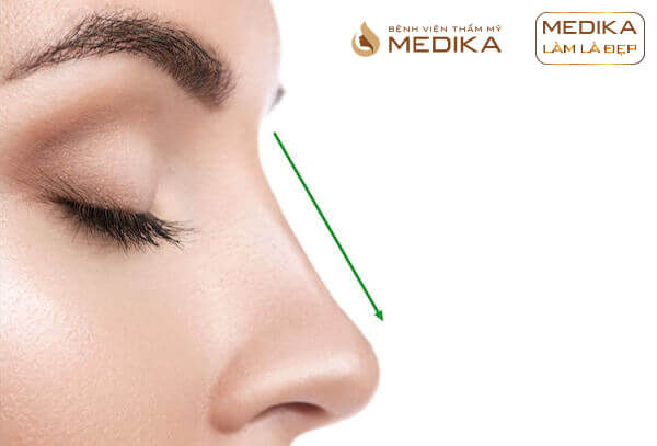 Nâng mũi cấu trúc L Line ở bệnh viện thẩm mỹ MEDIKA
