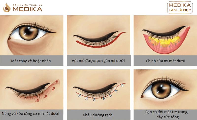 Phương pháp Lấy mỡ và da thừa mí mắt dưới ở Bệnh viện thẩm mỹ MEDIKA