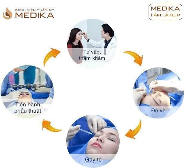 Quy trình Mắt sửa lại ở bệnh viện thẩm mỹ MEDIKA