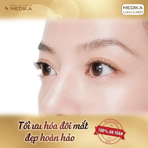 Phẫu thuật cắt mí mắt tối ưu hóa đôi mắt đẹp hoàn hảo MEDIKA
