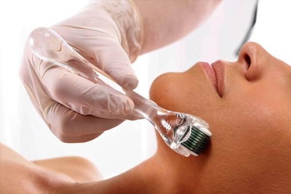 Phương pháp lăn kim tế bào gốc an toàn uy tín MEDIKA