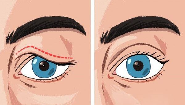Cắt mắt 2 mí - Cách khắc phục sụp mí mắt hiệu quả