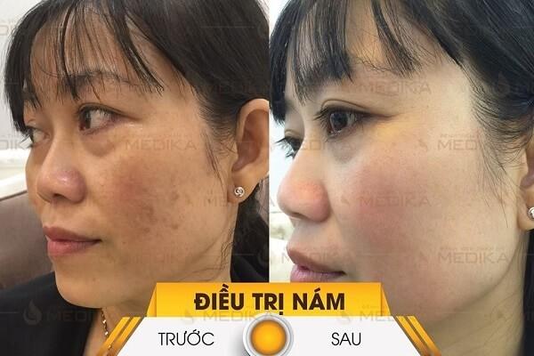 Nguyên nhân gây nám da và cách trị nám hiệu quả nhất