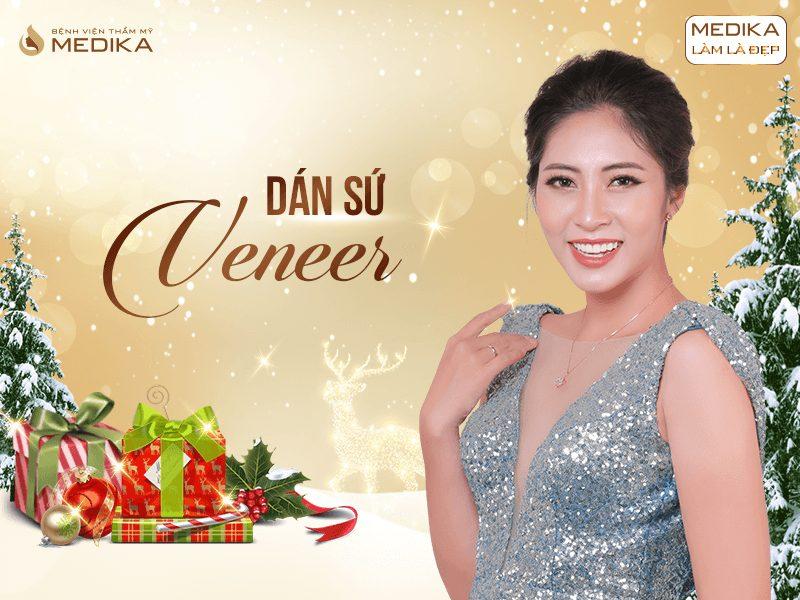 Những xu hướng thẩm mỹ được ưa chuộng nhất 2019 Dán sứ Veneer MEDIKA.vn