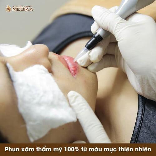 Phun môi Collagen đang được ưu chuộng ở Bệnh viện thẩm mỹ MEDIKA