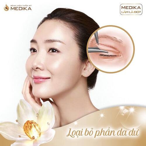 Phương pháp cắt mí Hàn Quốc loại bỏ phần da dư MEDIKA.vn