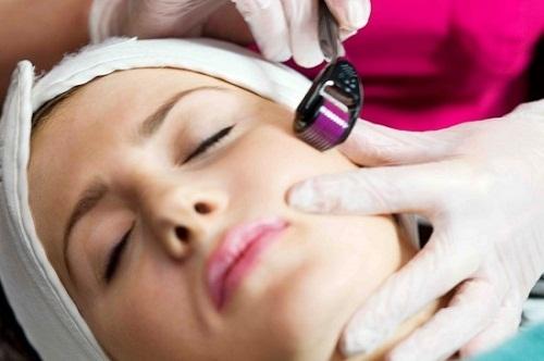 Phương pháp lăn kim tế bào gốc Bệnh viện thẩm mỹ MEDIKA