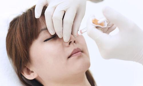Tiêm Filler mũi ở Bệnh viện thẩm mỹ MEDIKA