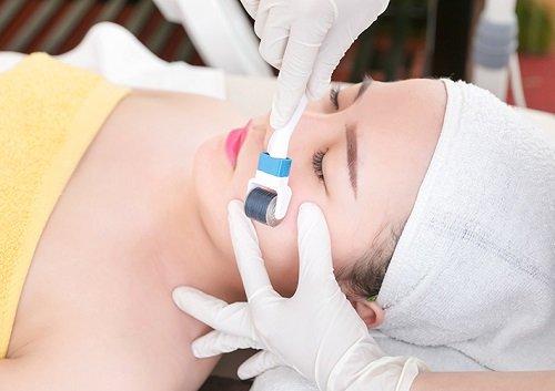 Chia sẻ kinh nghiệm điều trị sẹo rỗ bằng lăn kim tế bào gốc tại Bệnh viện thẩm mỹ MEDIKA