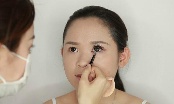 Chuyên gia chia sẻ việc mở rộng góc mắt trong có để lại sẹo không? Tại bệnh viện thẩm mỹ MEDIKA