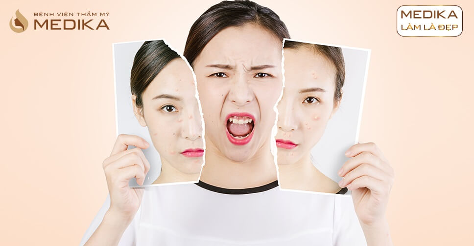 Điều trị mụn bằng Laser giải pháp điều trị mụn dưới da hiệu quả ở Bệnh viện thẩm mỹ MEDIKA
