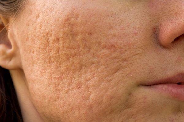 Lời khuyên sau quá trình điều trị sẹo rỗ bằng Laser tại Bệnh viện thẩm mỹ MEDIKA
