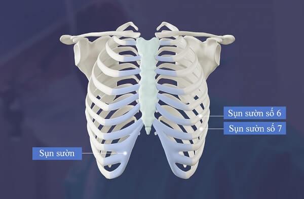 Nâng mũi bằng sụn sườn và những điều bạn cần biết khi thực hiện tại Bệnh viện thẩm mỹ MEDIKA