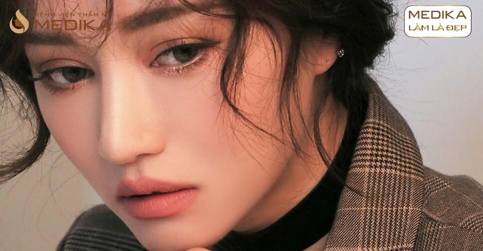 Nguyên nhân sau khi bấm mí mắt Hàn Quốc mắt bị sưng to ở MEDIKA.vn