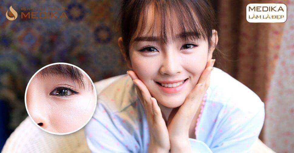 Cắt mí mắt Hàn Quốc có để lại biến chứng? Ở Bệnh viện thẩm mỹ MEDIKA