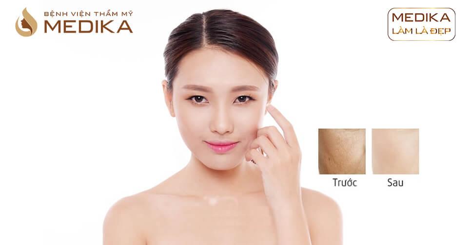 Thực hư khả năng làm đẹp bằng phương pháp cấy Collagen ở Bệnh viện thẩm mỹ MEDIKA