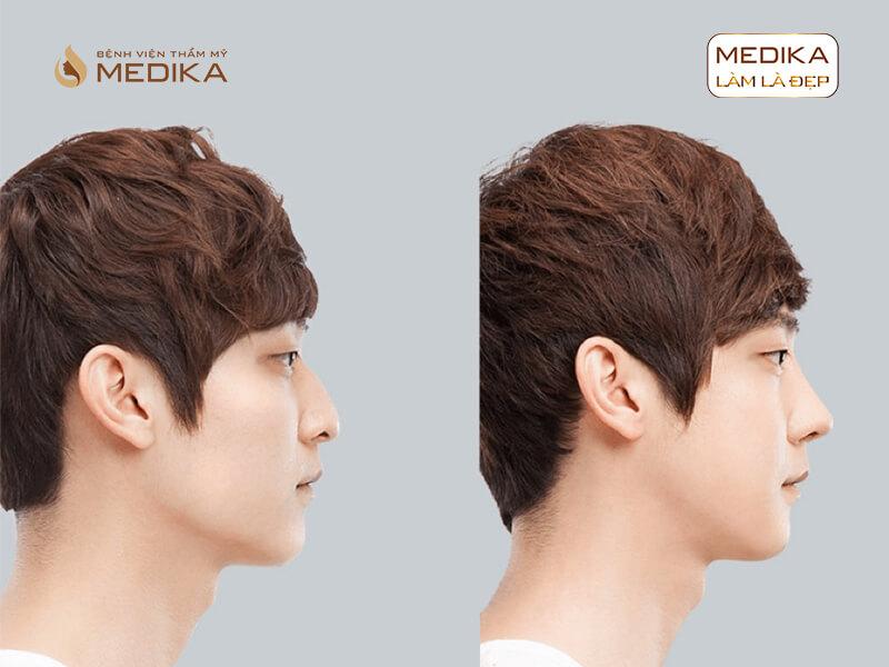 Bác sĩ tư vấn các dáng mũi đẹp khi nâng mũi Hàn Quốc cho nam tại bệnh viện thẩm mỹ MEDIKA