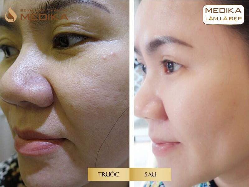 Bổ sung Collagen như thế nào là đúng cách để trẻ hóa làn da tại bệnh viện thẩm mỹ MEDIKA