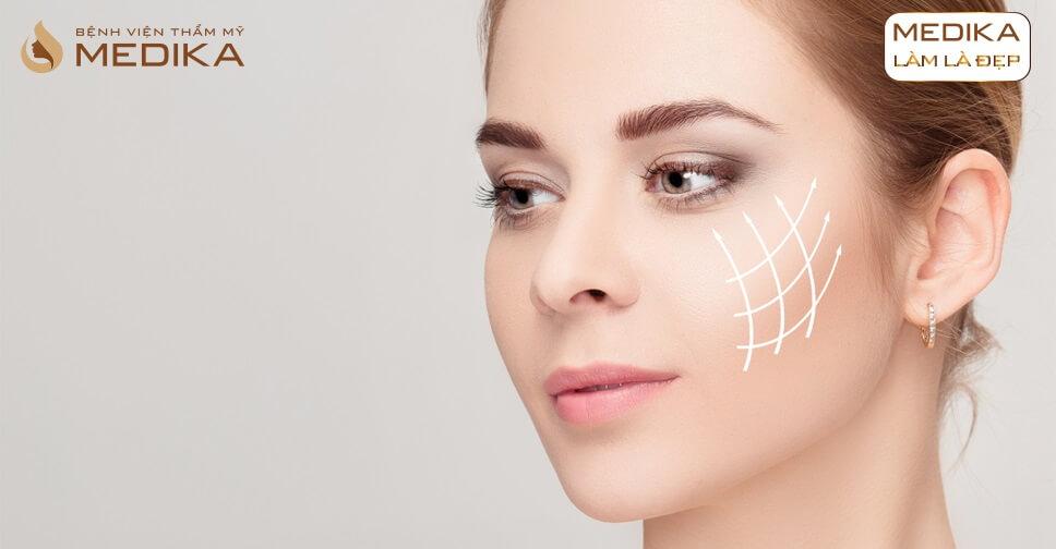 Các loại chỉ được sử dụng trong phương pháp căng da bằng chỉ ở bệnh viện thẩm mỹ MEDIKA