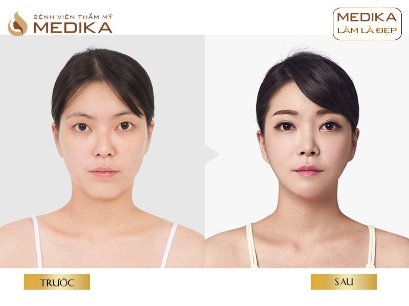 Có cần thiết phải sang Hàn Quốc để thực hiện cắt mí mắt Hàn Quốc tại bệnh viện thẩm mỹ MEDIKA
