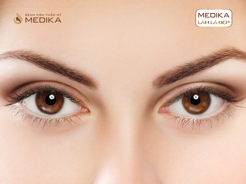 Kinh nghiệm bấm mí mắt giúp bạn có đôi mắt đẹp ở bệnh viện thẩm mỹ MEDIKA