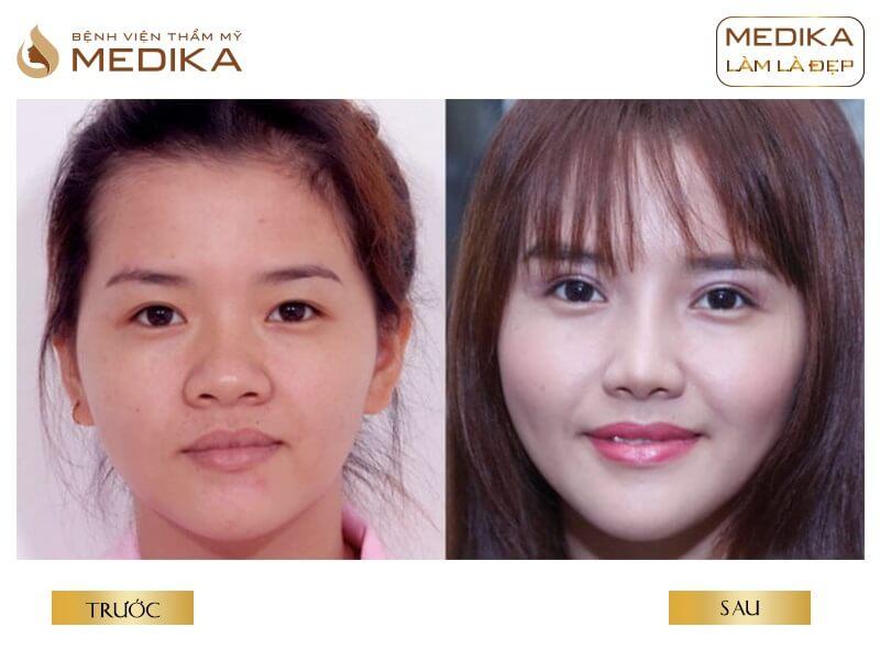 Kinh nghiệm khi lựa chọn bấm mí mắt Hàn Quốc tại bệnh viện thẩm mỹ MEDIKA