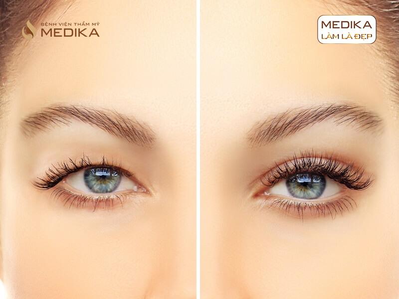 Một số ngộ nhận nguy hiểm về phương pháp cắt mí mắt ở bệnh viện thẩm mỹ MEDIKA